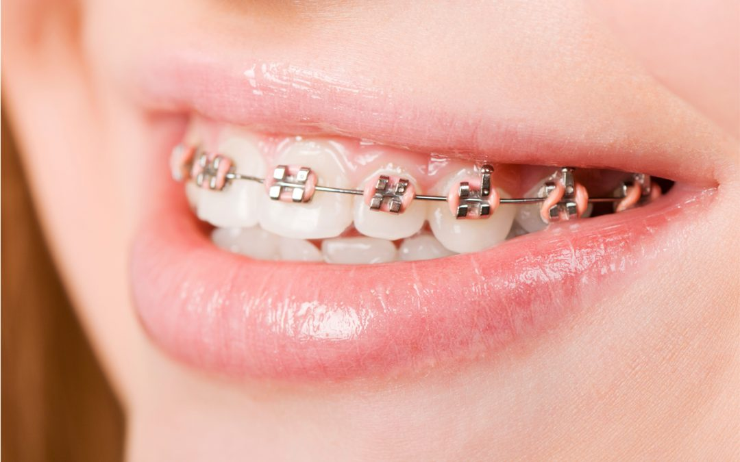 A Guide to Permanent Retainers after Braces- From Orthodontist