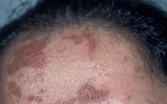 चेहरे पर गहरा त्वचा का रंग