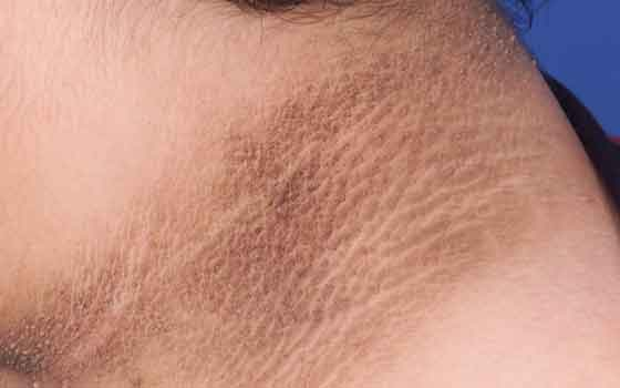 गर्दन पर काली त्वचा का रंग